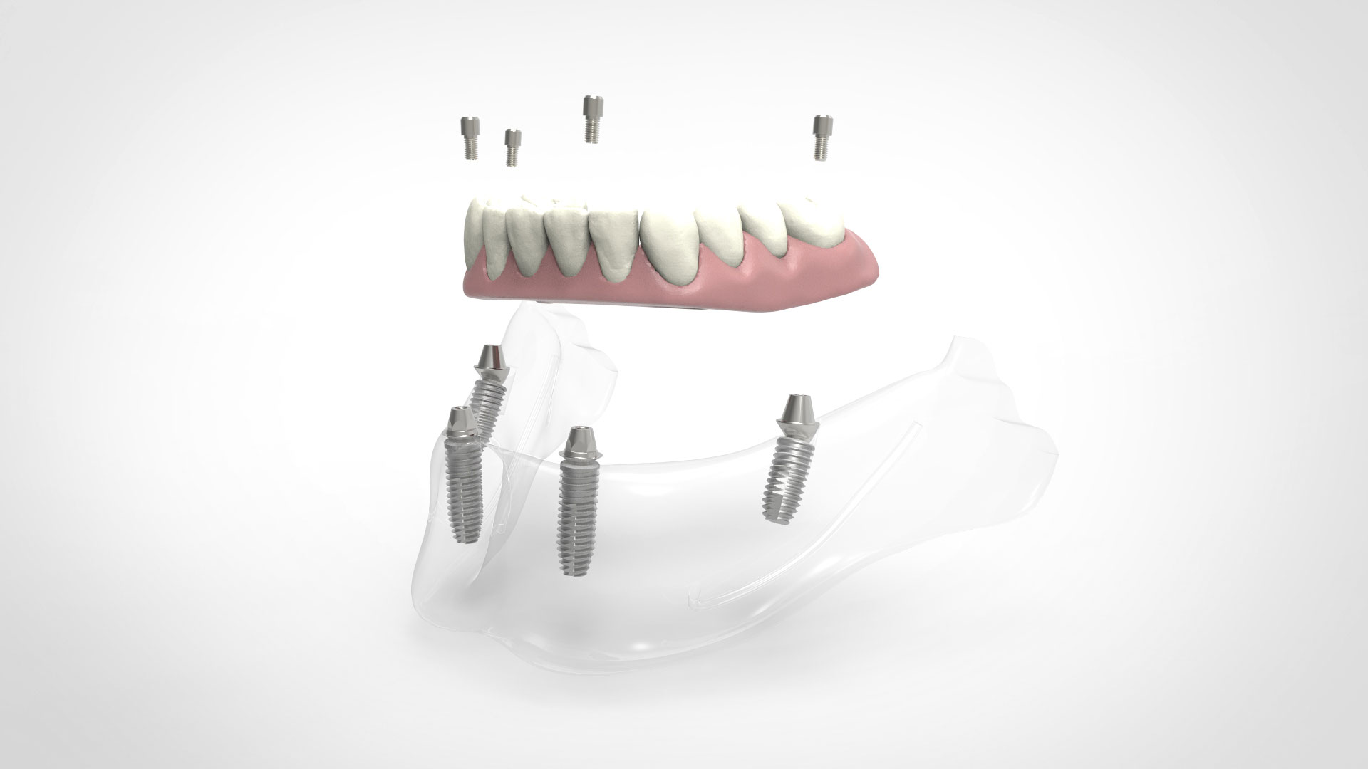 IMPLA-Multi-Unit | Vier Implantate im unteren Kiefer