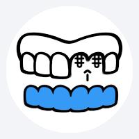 Einsatz der Zahnimplantate mit Hilfe einer speziellen Schablone
