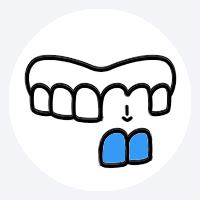 Eventuell Entfernung noch vorhandener Zähne