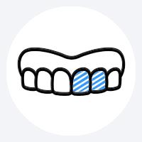 Fertigstellung mit provisorischem Zahnersatz
